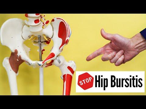 Artrózis effúziós kezelés. A porckopás (arthrosis) kezelési lehetőségei