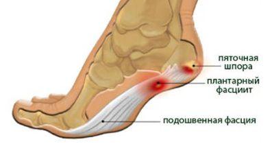 a lábízület fájdalmának oka)