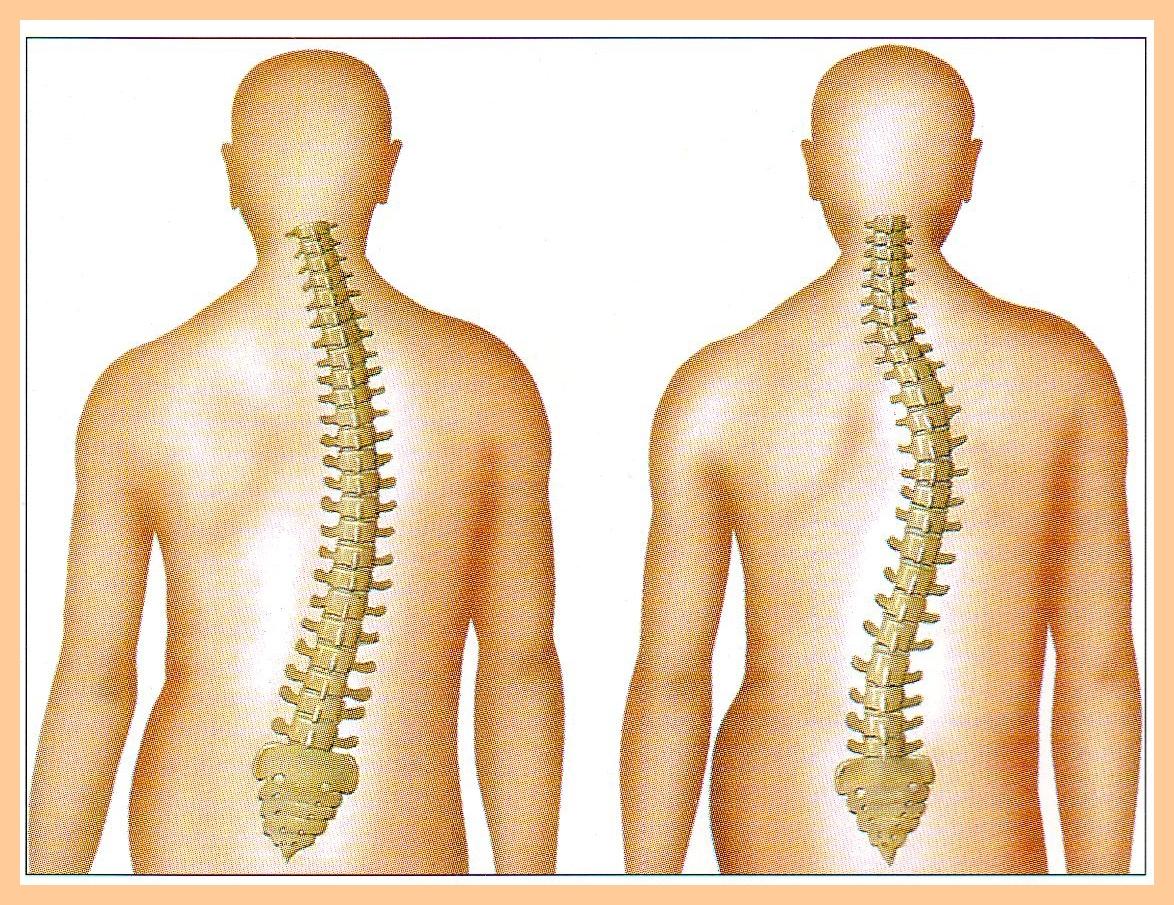 csontok és ízületek degeneratív degeneratív betegségei