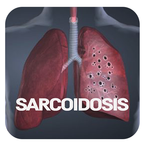 sarcoidosis ízületi fájdalom