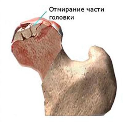 összeroppant és fájdalmak a csípőízületben