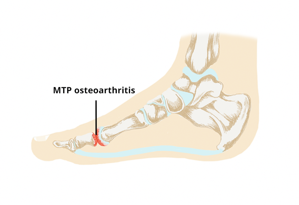 1st metatarsophalangeal joint osteoarthritis icd 10 az izmok és az ízületek fájnak