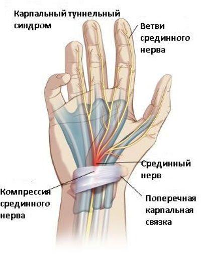 deformáló artrózis a kezek kezelésében