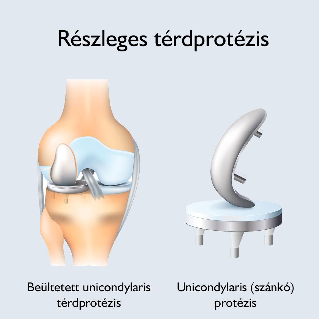 ízületi károsodások típusai