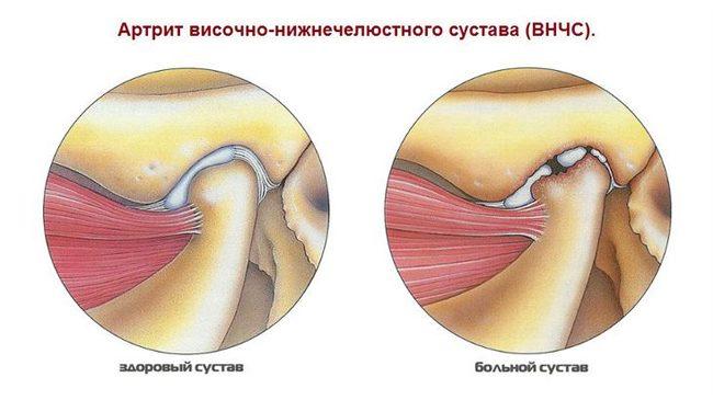 az arc ízülete fáj a tüneteket)