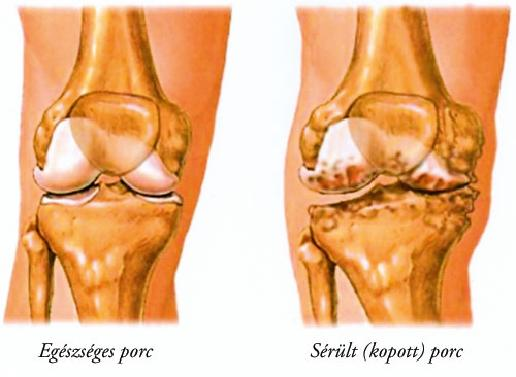 a térd artrózisának komplex kezelése