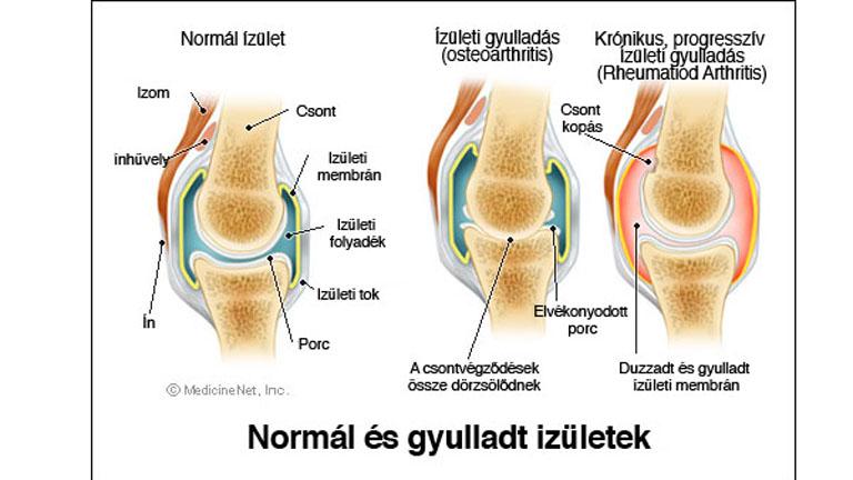 térd izületi folyadék izom- és ízületi fájdalom a vállban