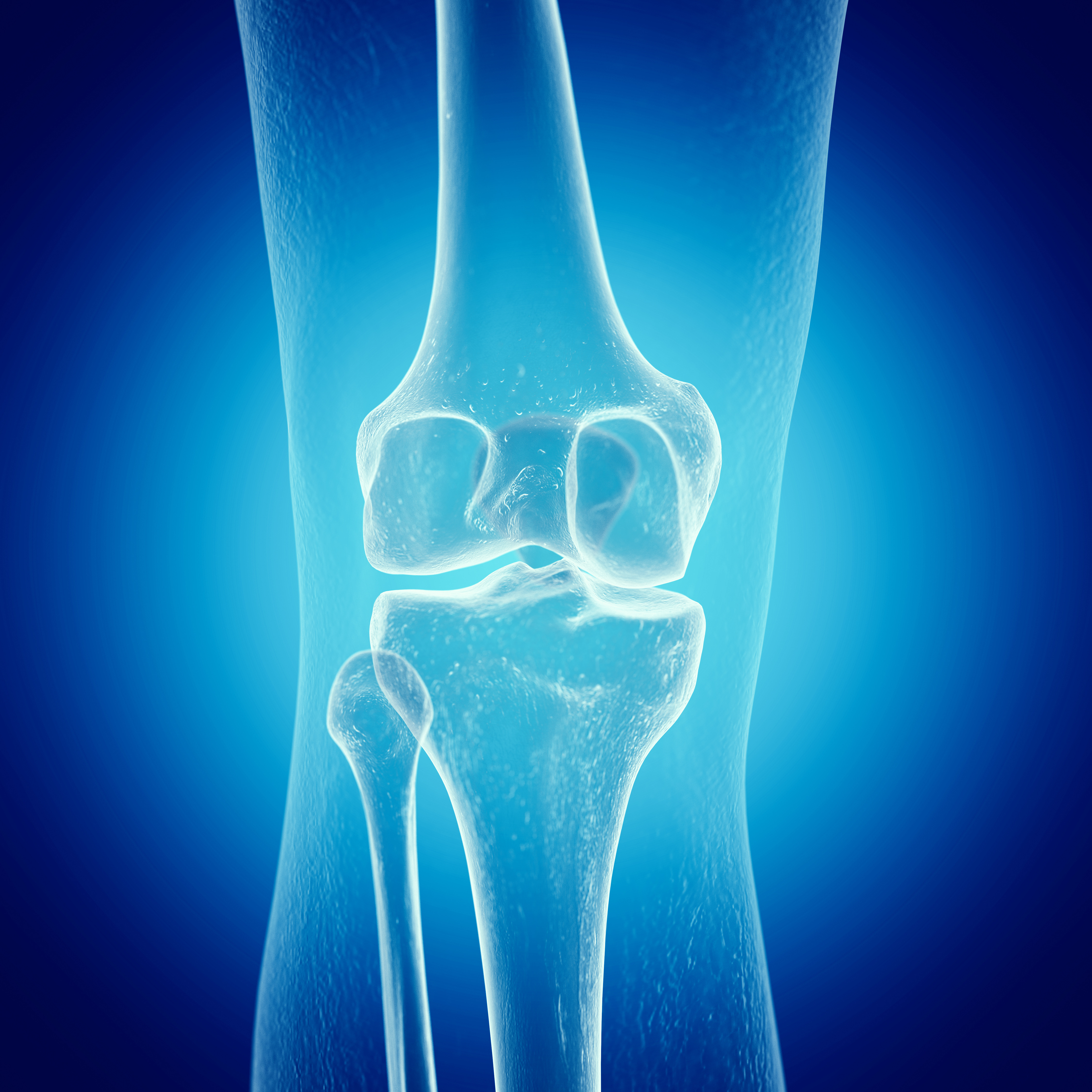 az elasztikus kötszer segíti az ízületi fájdalmakat