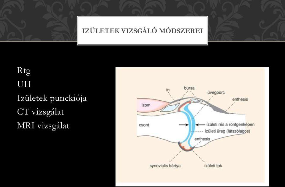 ízületi és csontbetegségek)