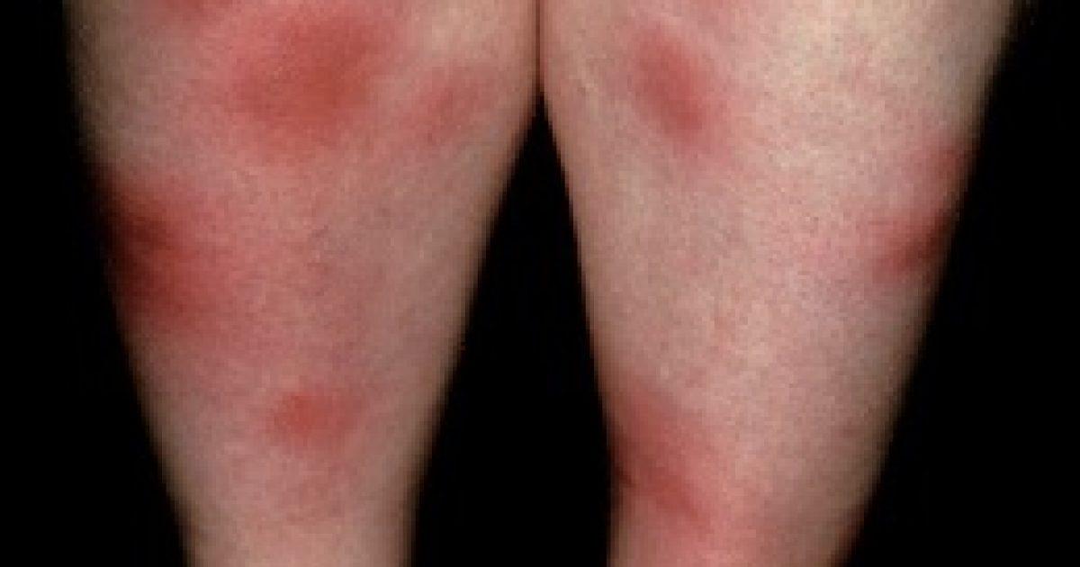 Ritka és nehezen felismerhető betegség a scleroderma   buggarage.hu