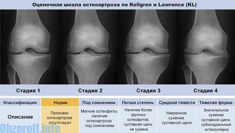 az artrózis harmadik szakaszának kezelése