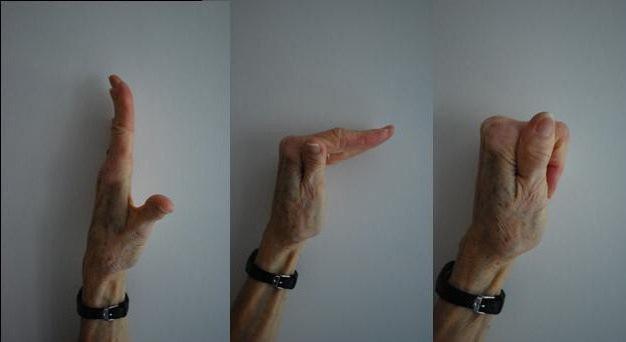 a kéz ujjai ízületeinek ragasztásainak törése