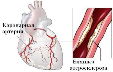 akut fájdalom a bal kéz vállízületében