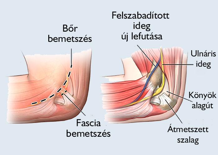 kenőcs borssal az ízületek neve kenőcsök, amelyek enyhítik az izomgörcsöt nyaki osteochondrozisban