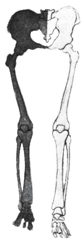 a vállízület kezelésének sárga szalagjainak hipertrófiája)