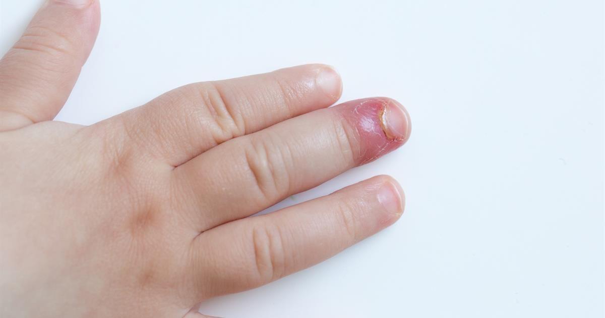 duzzadt ujjak ízületi fájdalmak)