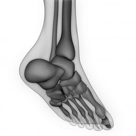 fájdalom a csontokban és a lábak ízületeiben