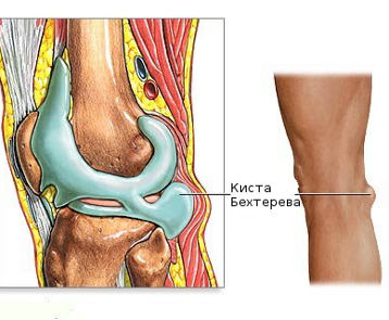 térdízület hipotermia hogyan kell kezelni a könyökízület fájdalma