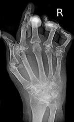 Minden deformáló osteoarthritis a keze
