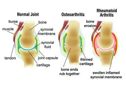 ízületi gyulladás - az artrózis tünetei és kezelése