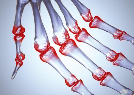 kétoldalú csípő dysplasia kezelés nem adja át a könyökízület fájdalmát