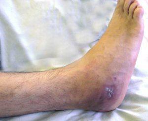 az osteomyelitis által bonyolult hamis ízület kezelése)