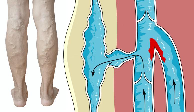 lábfájdalom vénákban vagy ízületekben)