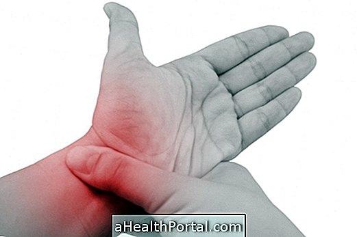rheumatoid arthritis kezelése kezekkel