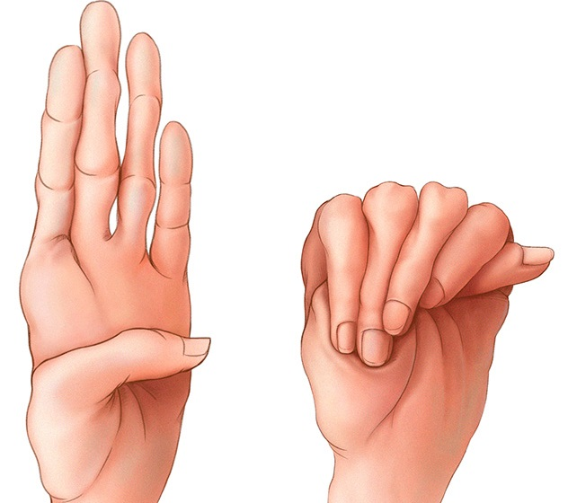 coxarthrosis kezelési protokoll