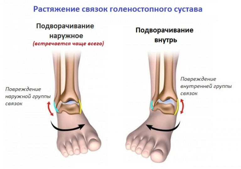 hogyan kezeljük a boka ligamentum-repedését