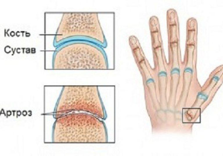 az ujjak rheumatoid arthrosisának kezelése menjen a fürdőbe ízületi fájdalommal