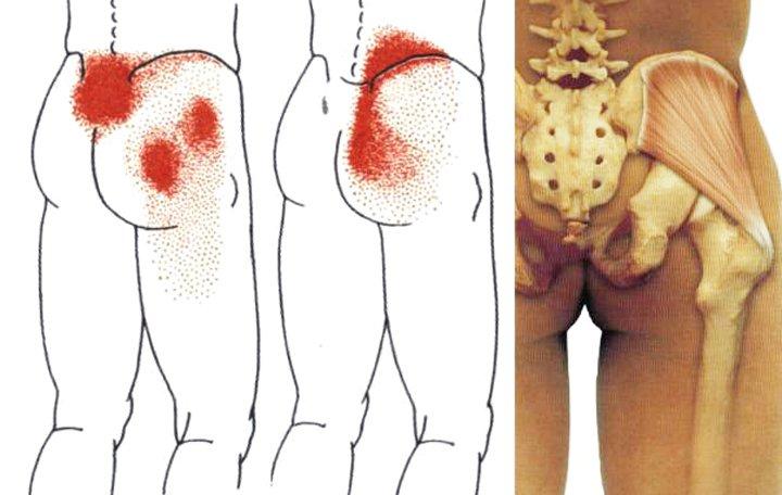 értágító gyógyszerek cervicothoracicus osteochondrozishoz ízületi kezelőberendezések