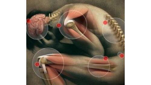 milyen tablettákra van szükség az ízületi fájdalmakhoz)