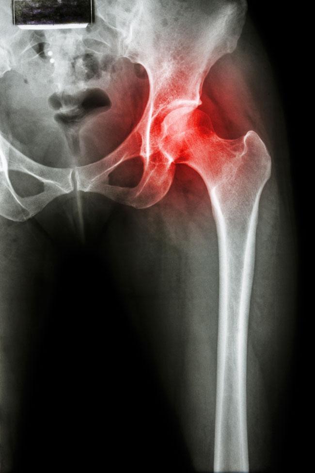 éles fájdalmak a csípőízületekben)