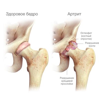 összeroppant és fájdalmak a csípőízületben térd deformációs ízületi gyulladása