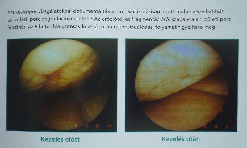 porcképző injekció térdbe barna kenyér ízületi fájdalmak kezelésére