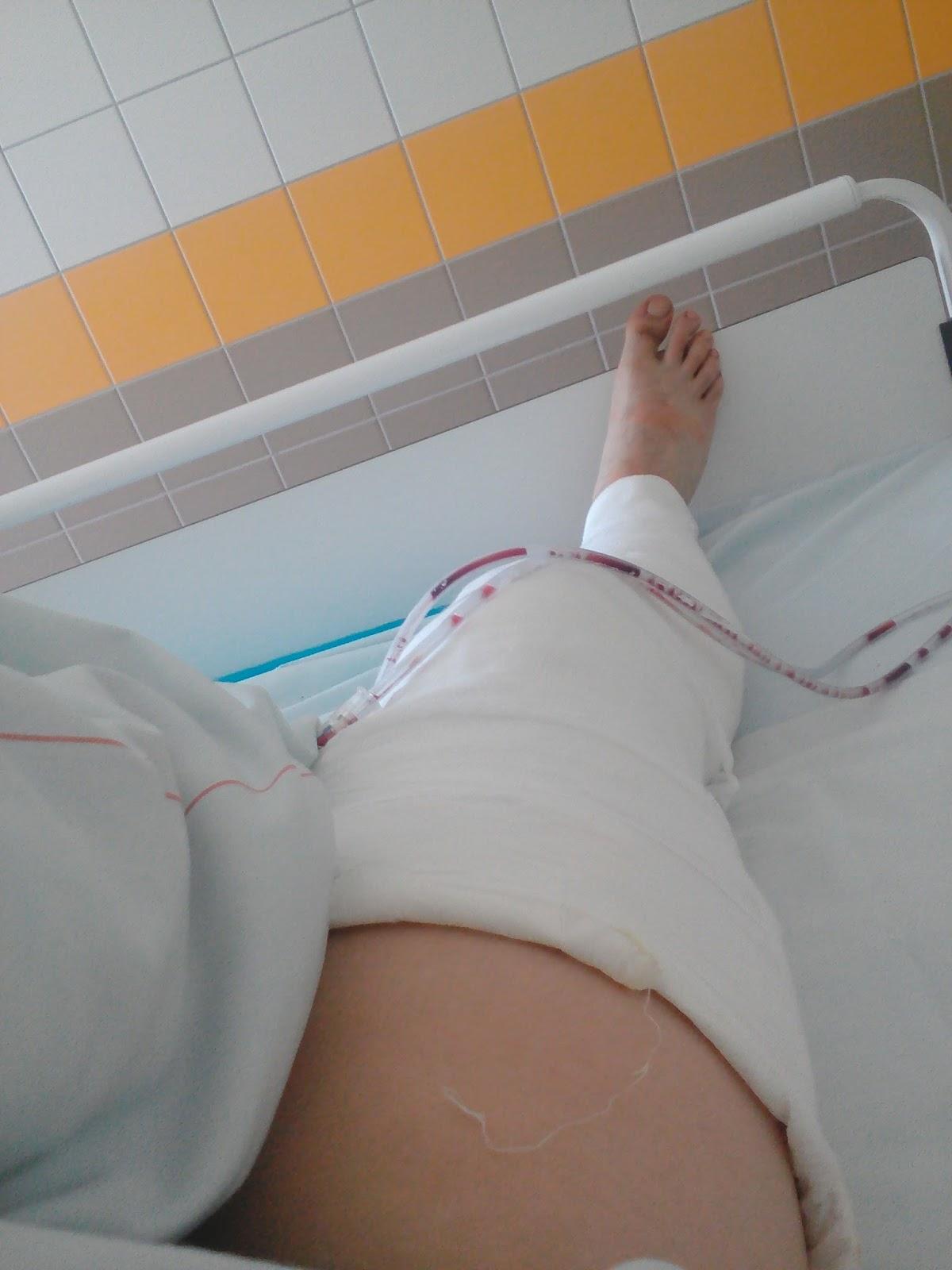 ha ropog és ízületi fájdalom hogyan lehet kezelni a nagy lábujj ízületének gyulladását