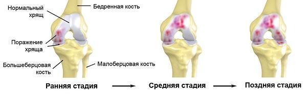 mi a csípőízület 3. fokának artrózisa)
