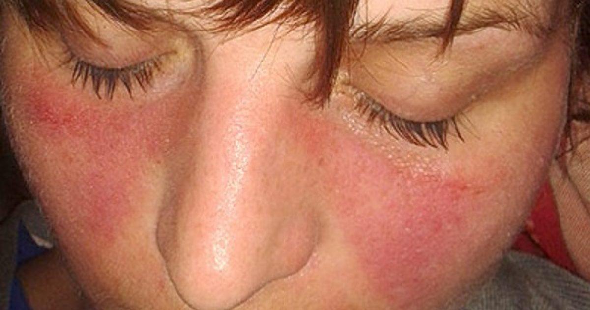 ritka kötőszöveti betegség