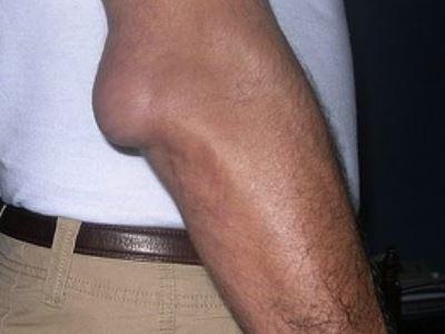 izom ízületek közelében térd patellofemoralis artrózisa 3 fokos kezelés