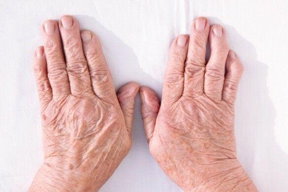 a csípőízület lágyszöveti gyulladása