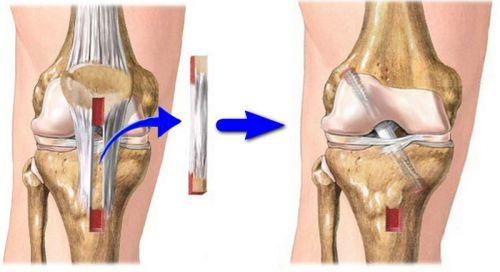 Térdműtétek utáni rehabilitáció AuBioRig® lábbelivel   chung shi Magyarország