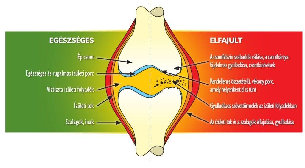 csontok és ízületek anaerob betegségei