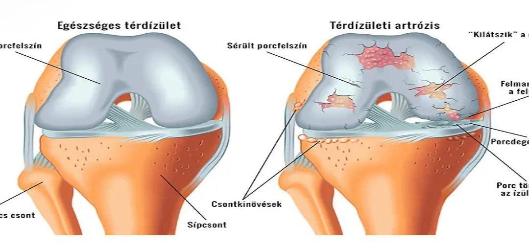 enyhítse a fájdalmat a térd artrózisával ízületi kenőcs égett