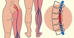 kötőszöveti gyulladás diagnosztizálása