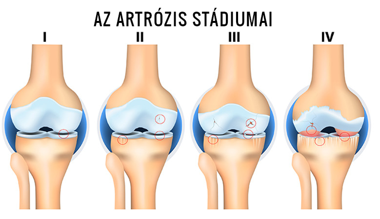 fájdalom kezelése térd artrózissal