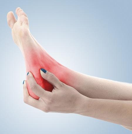 ízületi vagy lágyszöveti gyulladás a boka ízületének ízületeinek károsodása