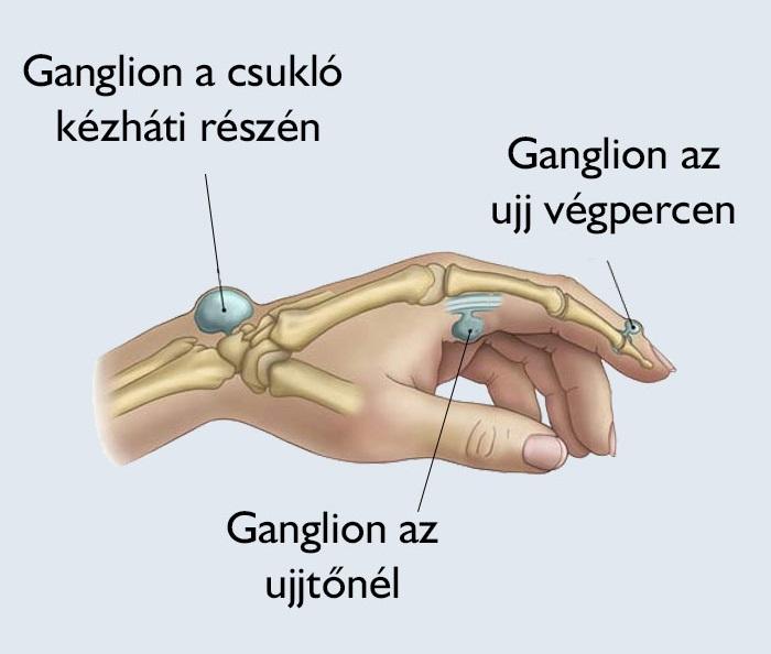 az ujj duzzanata a kar artritiszén)