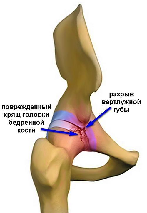 hajtások és fájdalom a csípőízületben