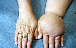 bokaödéma kezelése artrózissal)